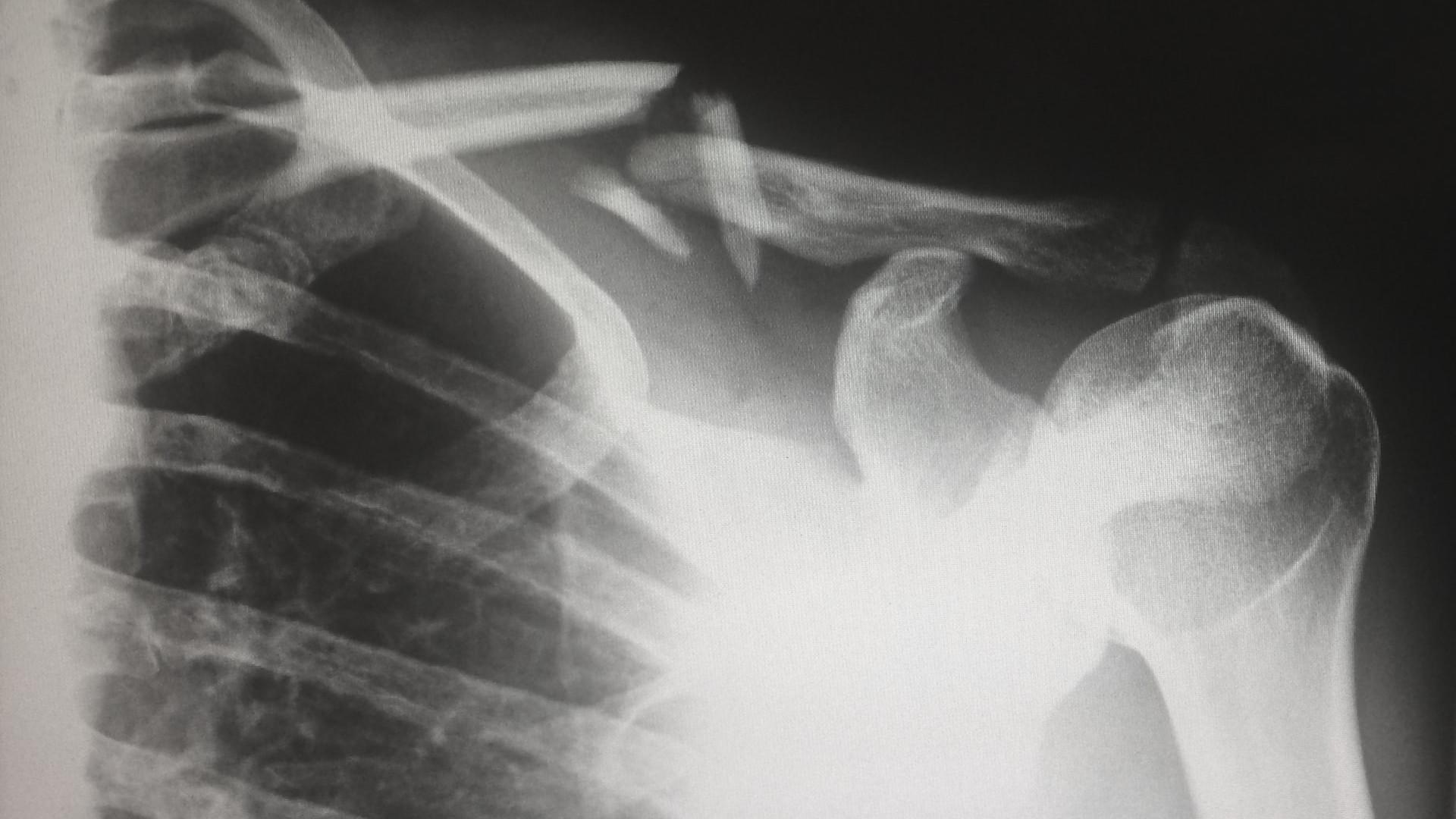 Radiografia lesión clavícula